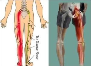 Sciatica without disk herniation radicular painnerve root pain sciatic nerve altavistaventures Choice Image