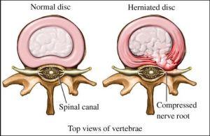 Verterbral disks